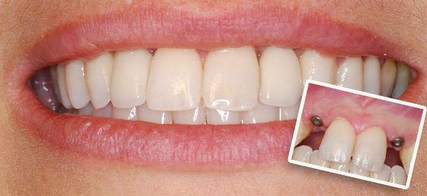 Имплантация зубов и её разновидности