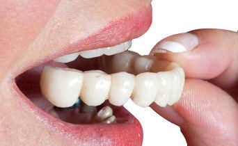 Процесс протезирование и зубные протезы
